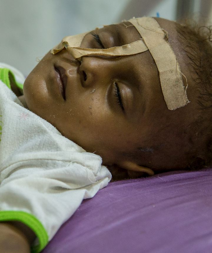 Injured Yemen child