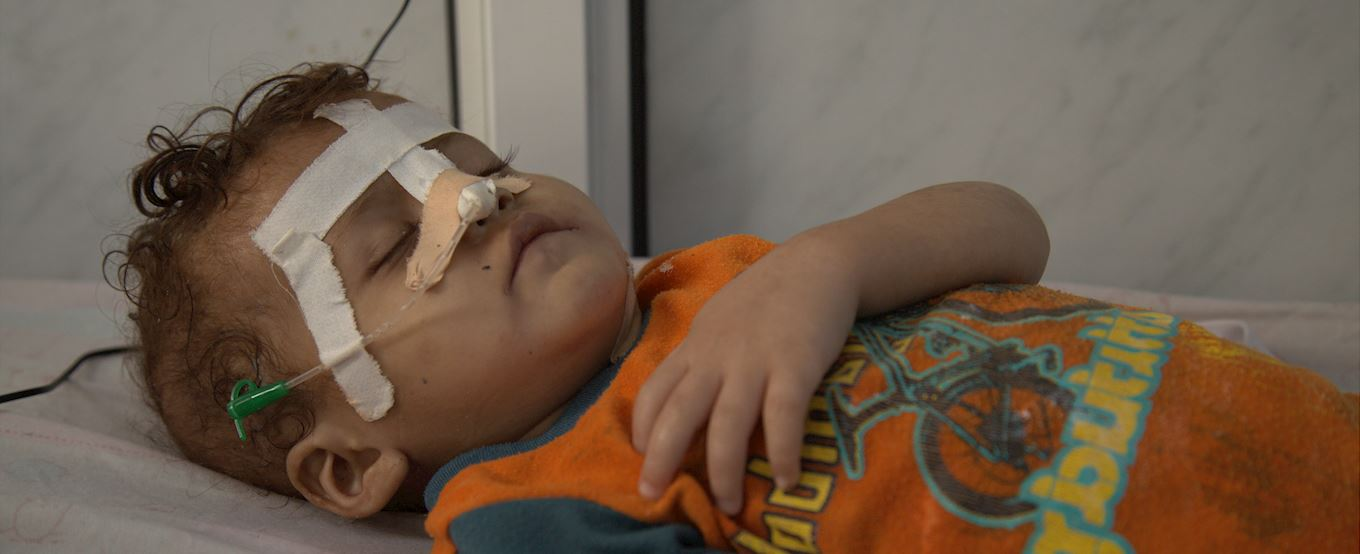 Young injured Yemeni child