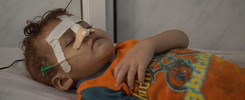 Injured Yemen child