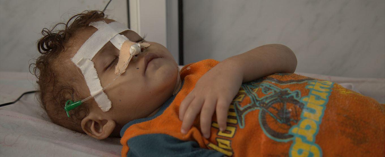 Young injured Yemeni child